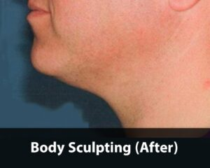 Body-Sculpting-after