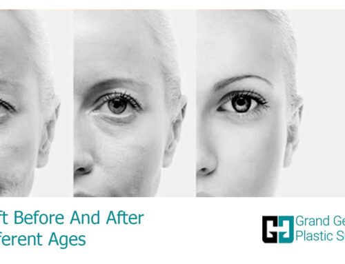 Facelift Before And After In Different Ages