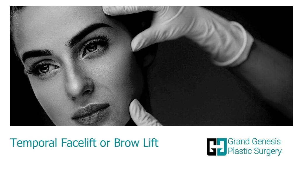 different types of facelift (rhytidectomy)